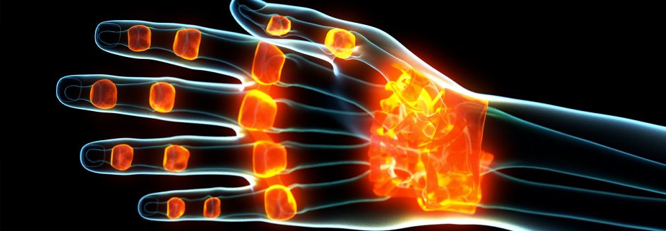 supplements for joints and ligaments